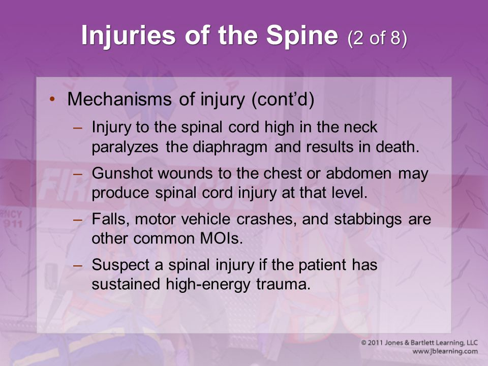 Injuries of the Spine (2 of 8) Mechanisms of injury (cont'd) –Injury to the spinal cord high in the neck paralyzes the diaphragm and results in death.