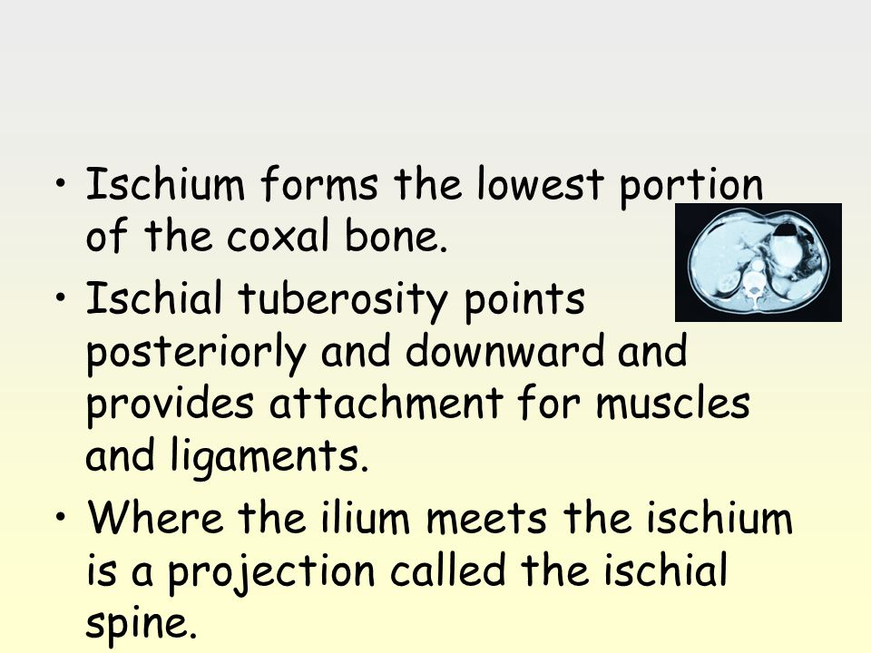 Ischium forms the lowest portion of the coxal bone. Ischial tuberosity points posteriorly and downward and provides attachment for muscles and ligamen