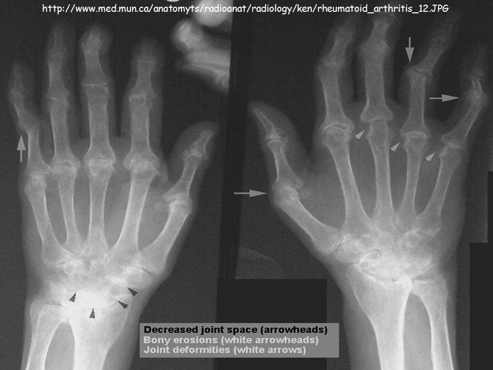 http://www.med.mun.ca/anatomyts/radioanat/radiology/ken/rheumatoid_arthritis_12.JPG