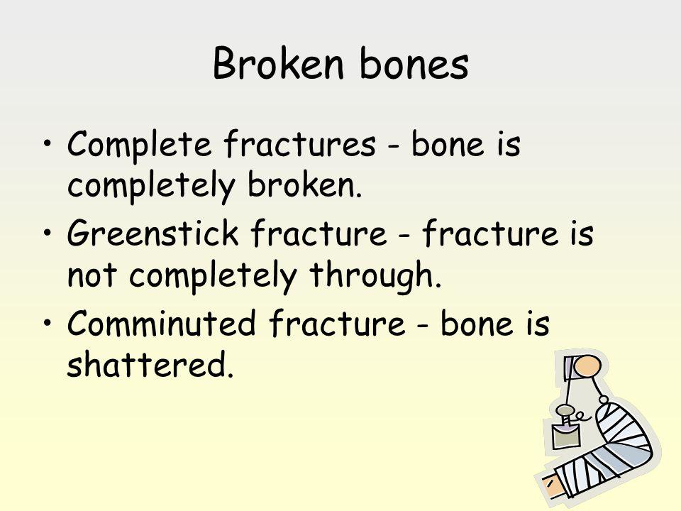 Broken bones Complete fractures - bone is completely broken. Greenstick fracture - fracture is not completely through. Comminuted fracture - bone is s
