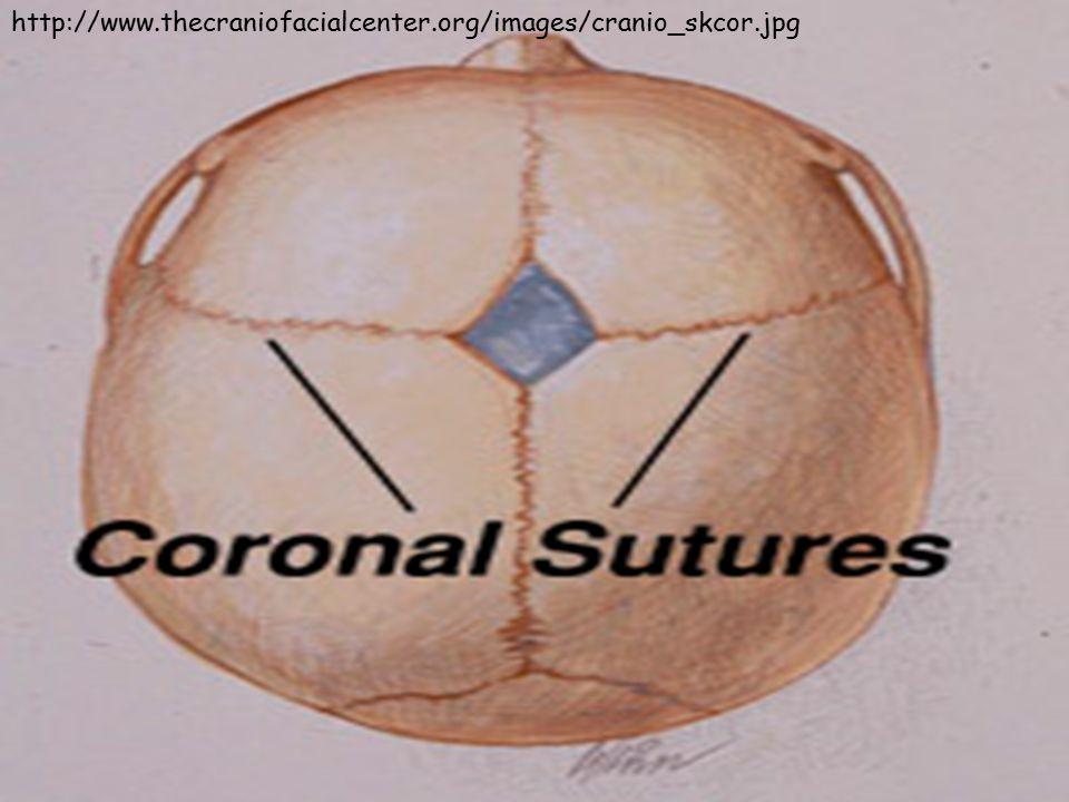 http://www.thecraniofacialcenter.org/images/cranio_skcor.jpg