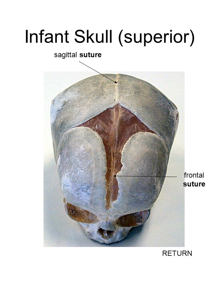 Infant Skull (superior) sagittal suture frontal suture RETURN