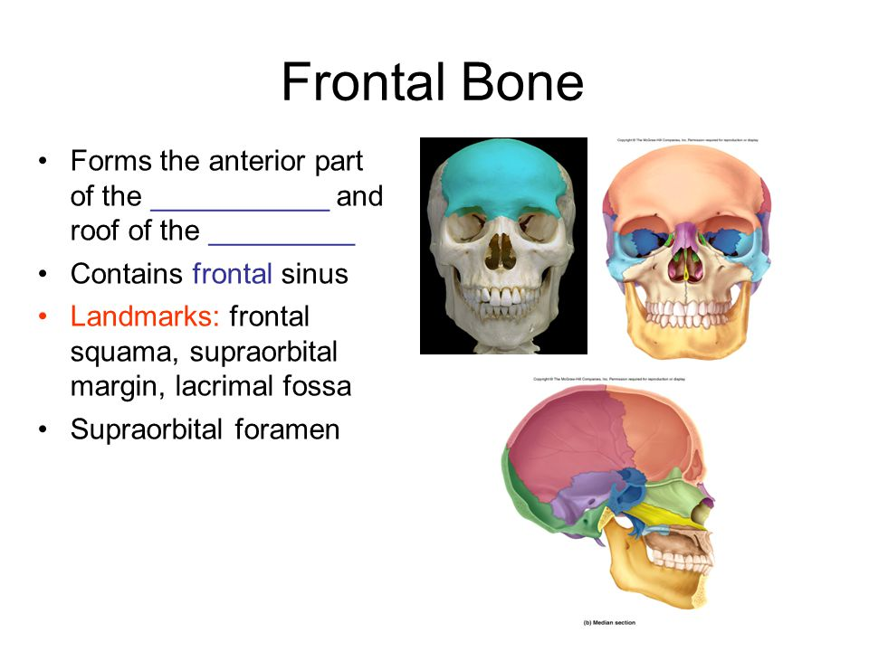 Parietal Bone Form part of the ____ and ____ surfaces of cranium Bordered by 4 sutures Landmarks: Temporal lines for attachment of _________ muscle