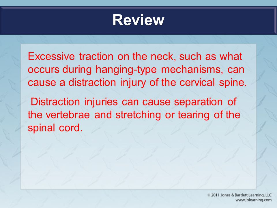 Review Excessive traction on the neck, such as what occurs during hanging-type mechanisms, can cause a distraction injury of the cervical spine. Distr