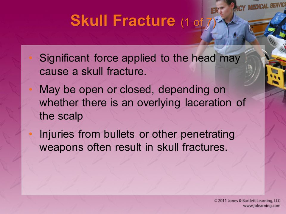 Skull Fracture (1 of 7) Significant force applied to the head may cause a skull fracture. May be open or closed, depending on whether there is an over