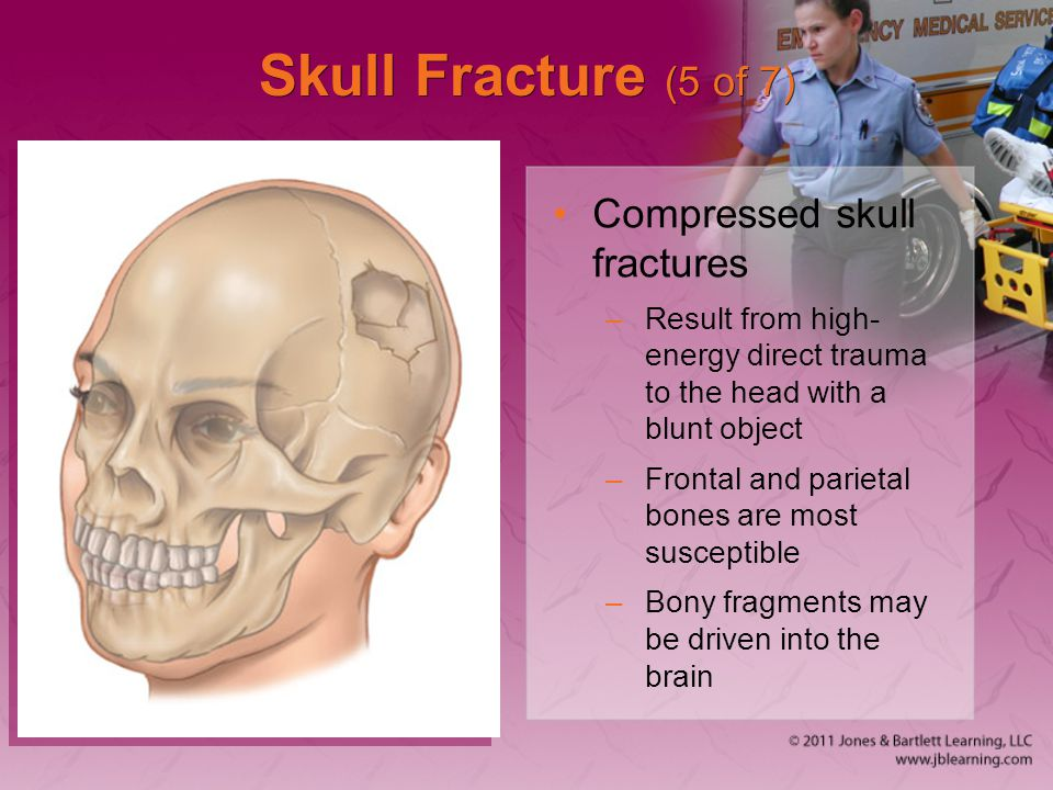 Skull Fracture (5 of 7) Compressed skull fractures –Result from high- energy direct trauma to the head with a blunt object –Frontal and parietal bones