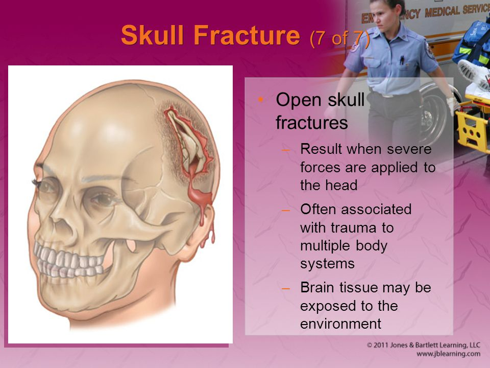 Skull Fracture (7 of 7) Open skull fractures –Result when severe forces are applied to the head –Often associated with trauma to multiple body systems