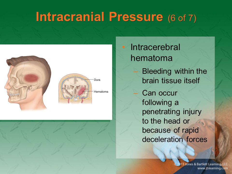 Intracranial Pressure (6 of 7) Intracerebral hematoma –Bleeding within the brain tissue itself –Can occur following a penetrating injury to the head o