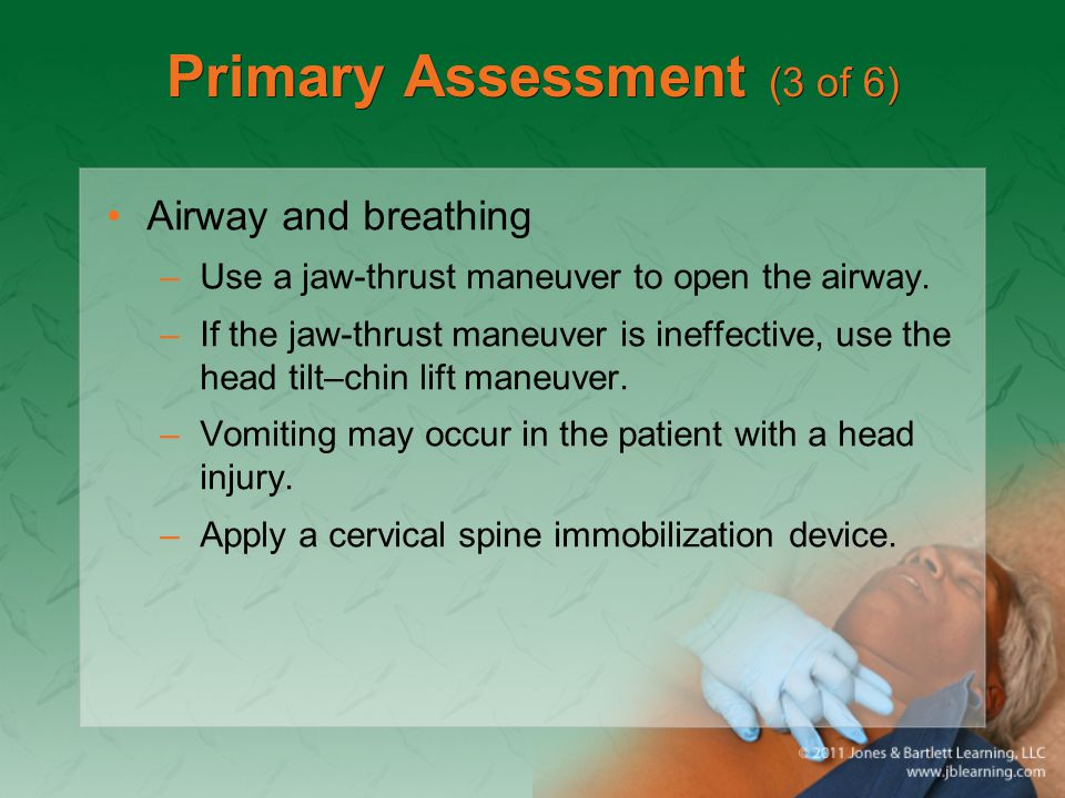 Primary Assessment (3 of 6) Airway and breathing –Use a jaw-thrust maneuver to open the airway. –If the jaw-thrust maneuver is ineffective, use the he