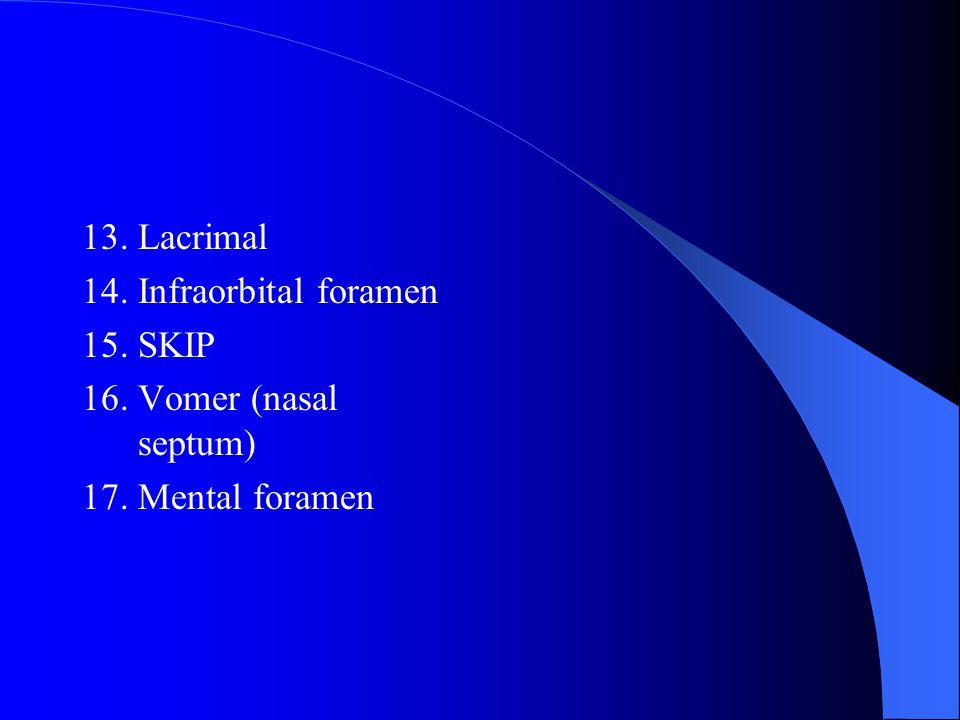 13. Lacrimal 14. Infraorbital foramen 15. SKIP 16. Vomer (nasal septum) 17. Mental foramen