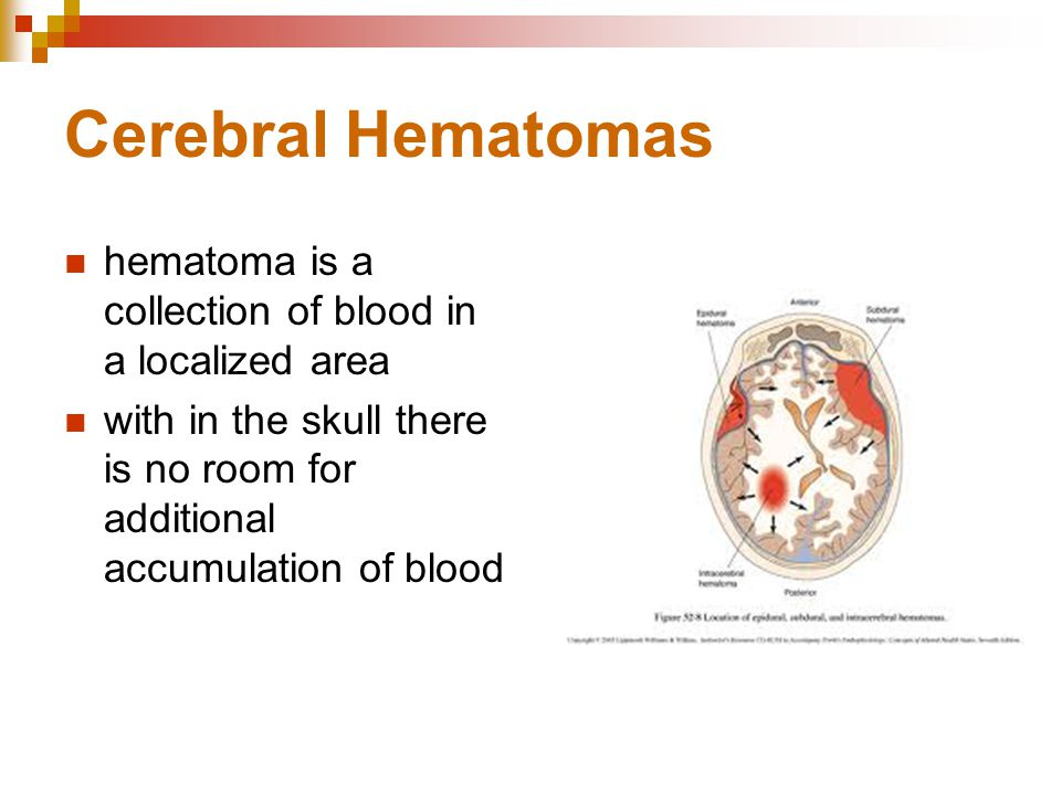 Cerebral Hematomas hematoma is a collection of blood in a localized area with in the skull there is no room for additional accumulation of blood