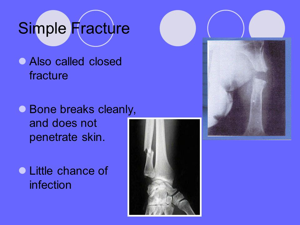 Simple Fracture Also called closed fracture Bone breaks cleanly, and does not penetrate skin. Little chance of infection