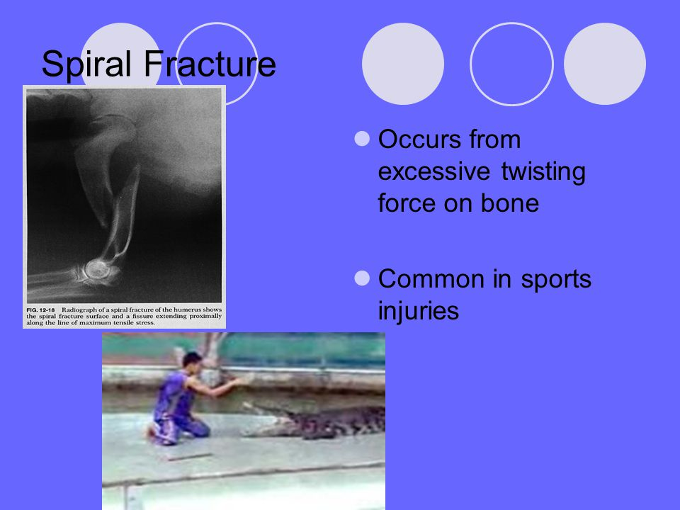 Spiral Fracture Occurs from excessive twisting force on bone Common in sports injuries
