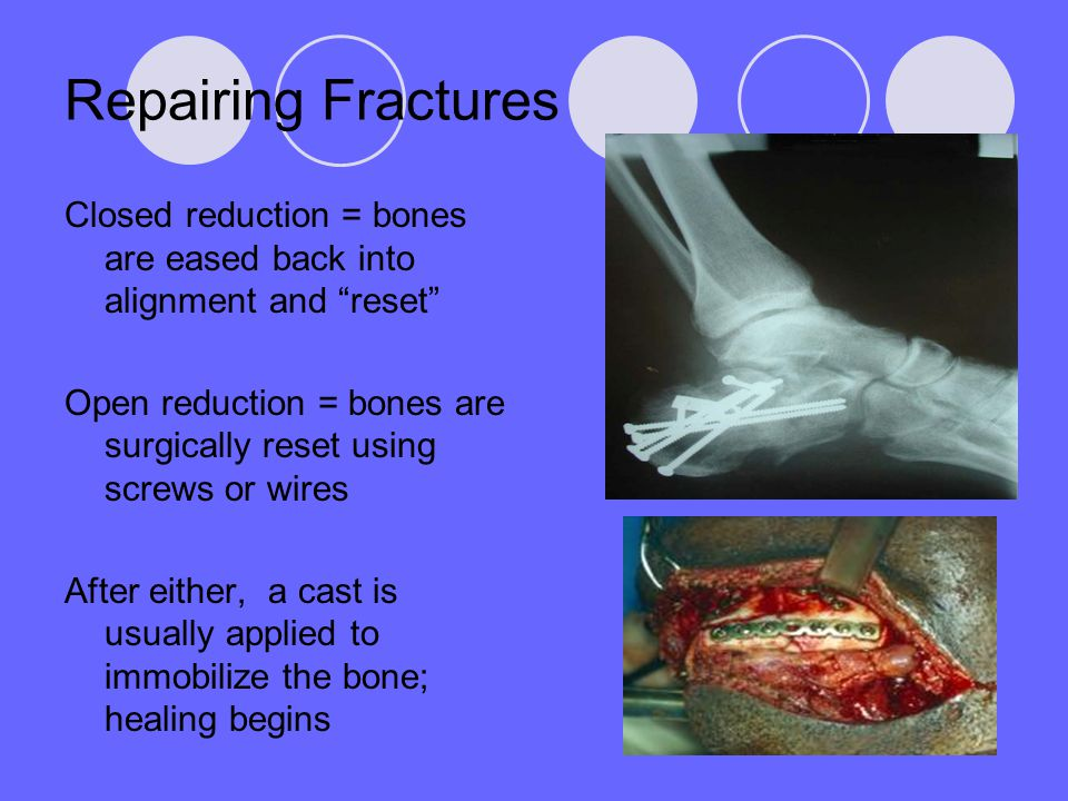 "Repairing Fractures Closed reduction = bones are eased back into alignment and ""reset"" Open reduction = bones are surgically reset using screws or wir"