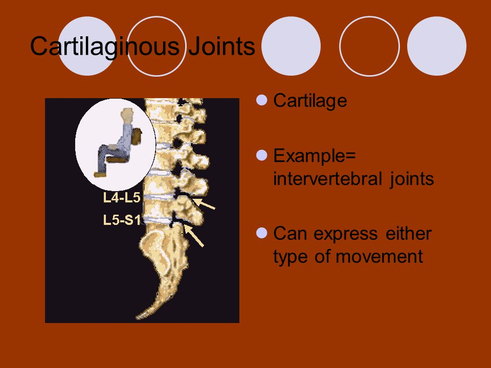 Cartilaginous Joints Cartilage Example= intervertebral joints Can express either type of movement