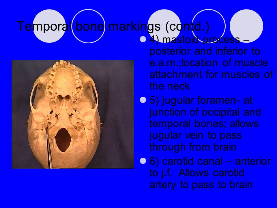 Temporal bone markings (contd.) 4) mastoid process – posterior and inferior to e.a.m.;location of muscle attachment for muscles of the neck 5) jugular