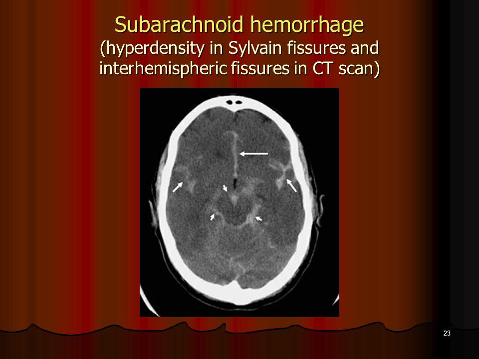 23 Subarachnoid hemorrhage (hyperdensity in Sylvain fissures and interhemispheric fissures in CT scan)