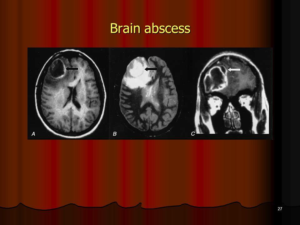 Brain abscess 27