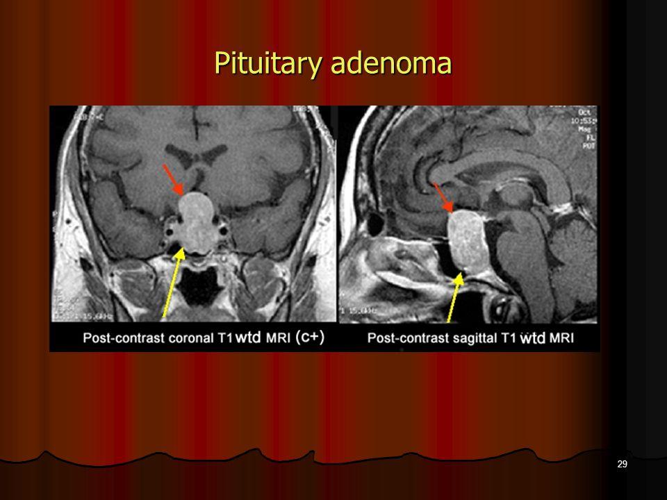 29 Pituitary adenoma