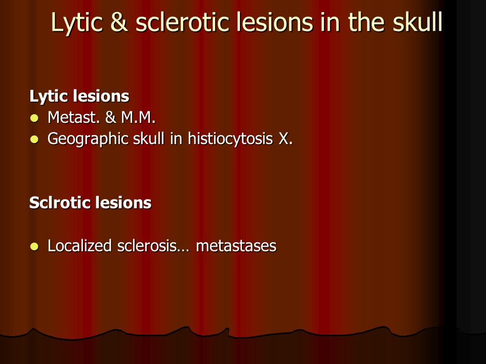 Lytic & sclerotic lesions in the skull Lytic lesions Metast.