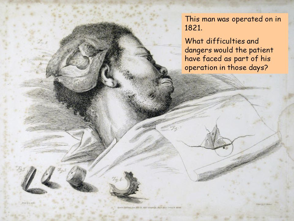 This man was operated on in 1821.