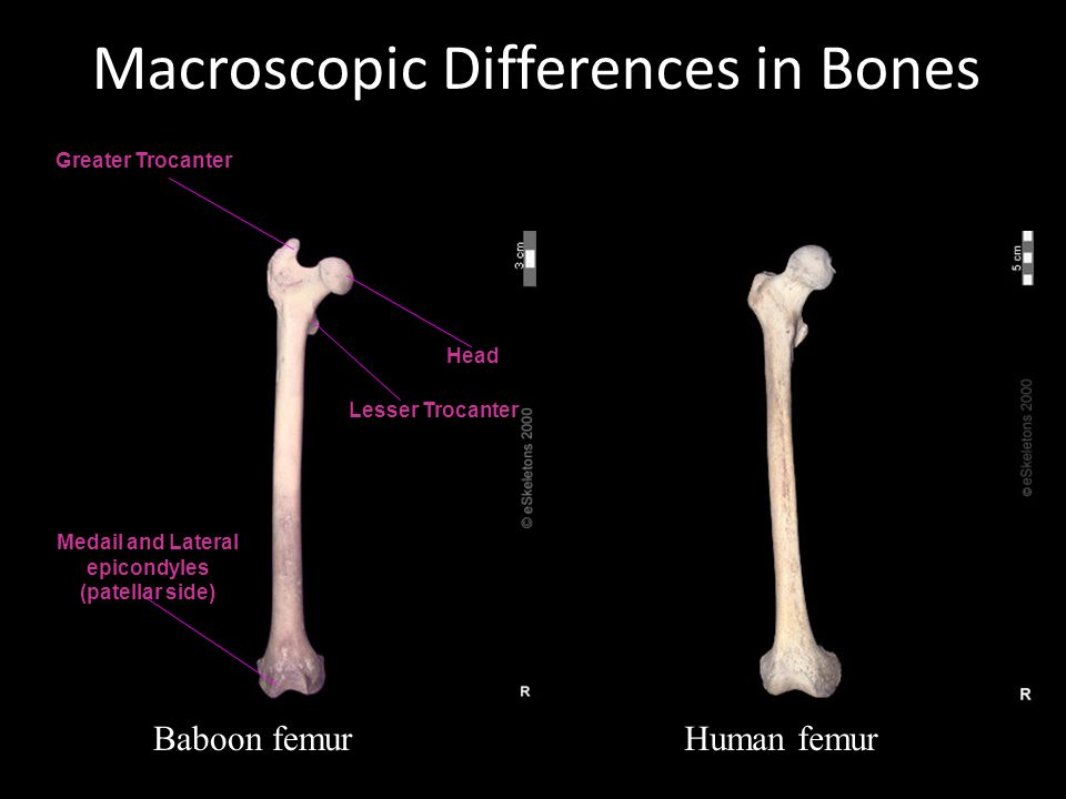 Macroscopic Differences in Bones Baboon femurHuman femur Greater Trocanter Lesser Trocanter Head Medail and Lateral epicondyles (patellar side)