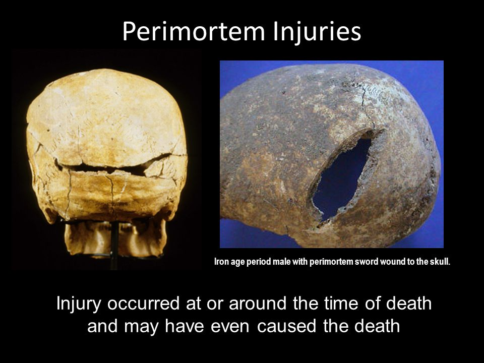Perimortem Injuries Injury occurred at or around the time of death and may have even caused the death Iron age period male with perimortem sword wound to the skull.