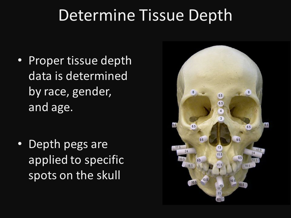 Determine Tissue Depth Proper tissue depth data is determined by race, gender, and age.