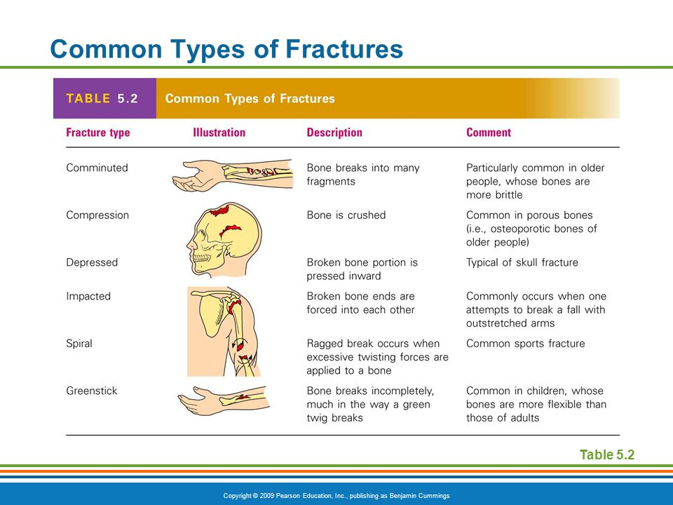 Copyright © 2009 Pearson Education, Inc., publishing as Benjamin Cummings Common Types of Fractures Table 5.2