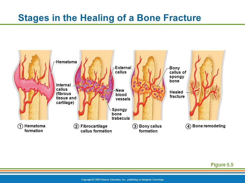 Copyright © 2009 Pearson Education, Inc., publishing as Benjamin Cummings Stages in the Healing of a Bone Fracture Figure 5.5 Hematoma External callus Bony callus of spongy bone Healed fracture New blood vessels Internal callus (fibrous tissue and cartilage) Spongy bone trabecula Hematoma formation Fibrocartilage callus formation Bony callus formation Bone remodeling