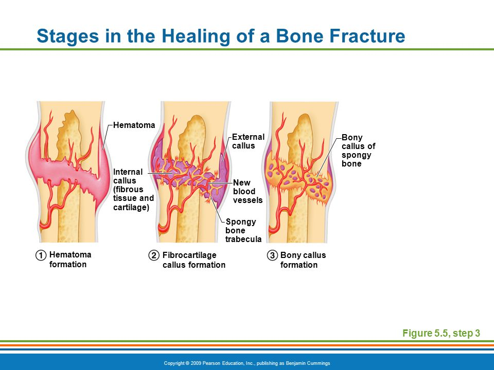 Copyright © 2009 Pearson Education, Inc., publishing as Benjamin Cummings Stages in the Healing of a Bone Fracture Figure 5.5, step 3 Hematoma External callus Bony callus of spongy bone New blood vessels Internal callus (fibrous tissue and cartilage) Spongy bone trabecula Hematoma formation Fibrocartilage callus formation Bony callus formation
