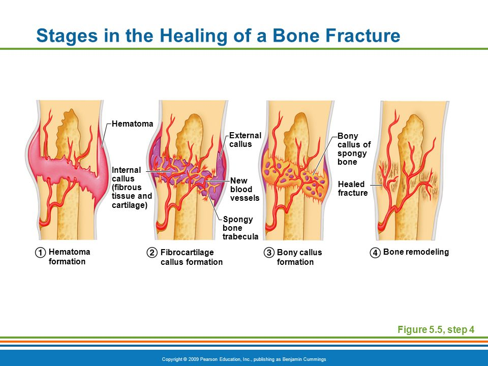 Copyright © 2009 Pearson Education, Inc., publishing as Benjamin Cummings Stages in the Healing of a Bone Fracture Figure 5.5, step 4 Hematoma External callus Bony callus of spongy bone Healed fracture New blood vessels Internal callus (fibrous tissue and cartilage) Spongy bone trabecula Hematoma formation Fibrocartilage callus formation Bony callus formation Bone remodeling