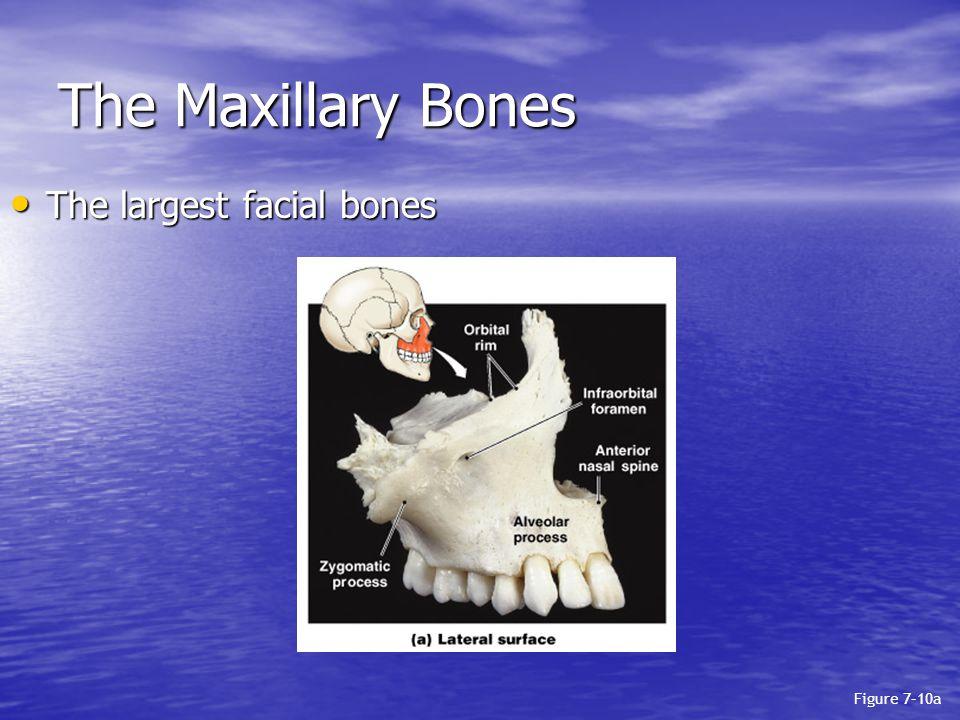 The Maxillary Bones The largest facial bones The largest facial bones Figure 7–10a