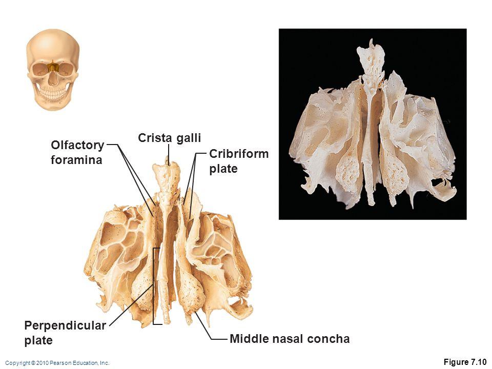Copyright © 2010 Pearson Education, Inc. Figure 7.10 Perpendicular plate Middle nasal concha Cribriform plate Olfactory foramina Crista galli