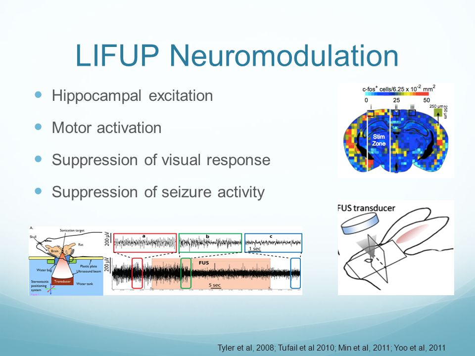 Challenges for Human LIFUP Skull absorbs energy Skull changes shape of beam focus Skull changes location of beam focus Invisible beam Ultrasound X