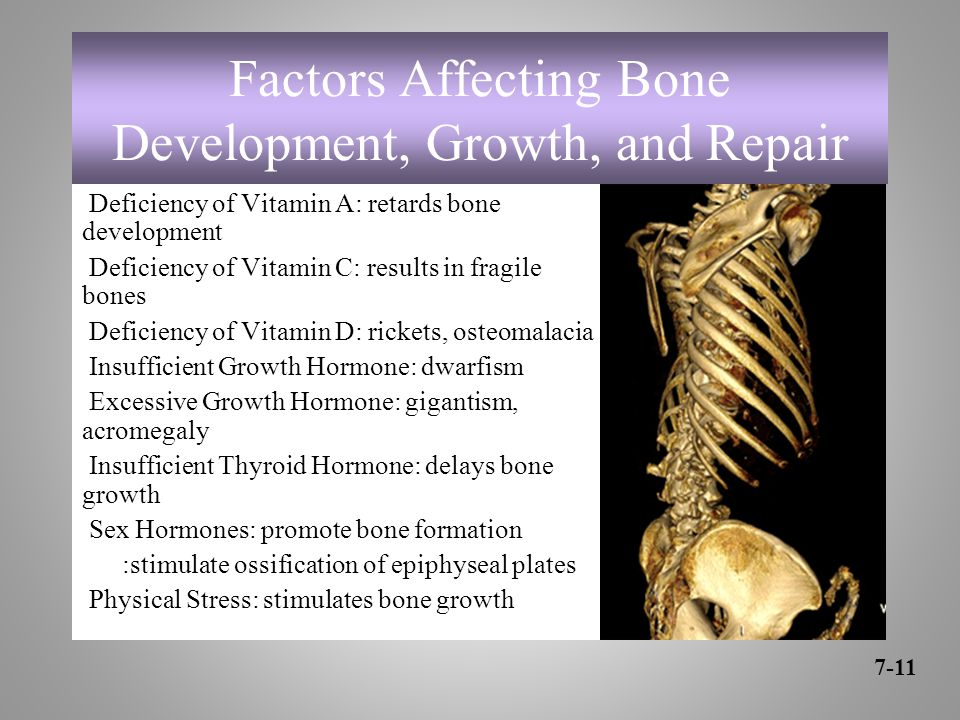 Factors Affecting Bone Development, Growth, and Repair Deficiency of Vitamin A: retards bone development Deficiency of Vitamin C: results in fragile bones Deficiency of Vitamin D: rickets, osteomalacia Insufficient Growth Hormone: dwarfism Excessive Growth Hormone: gigantism, acromegaly Insufficient Thyroid Hormone: delays bone growth Sex Hormones: promote bone formation :stimulate ossification of epiphyseal plates Physical Stress: stimulates bone growth 7-11