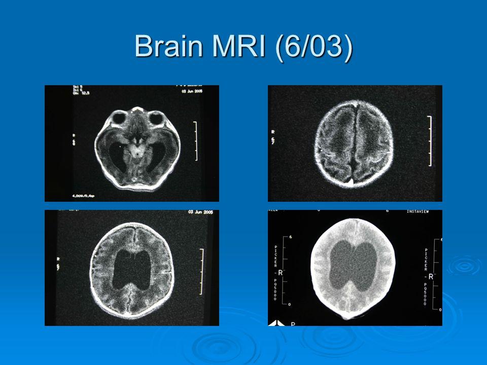 Brain MRI (6/03)