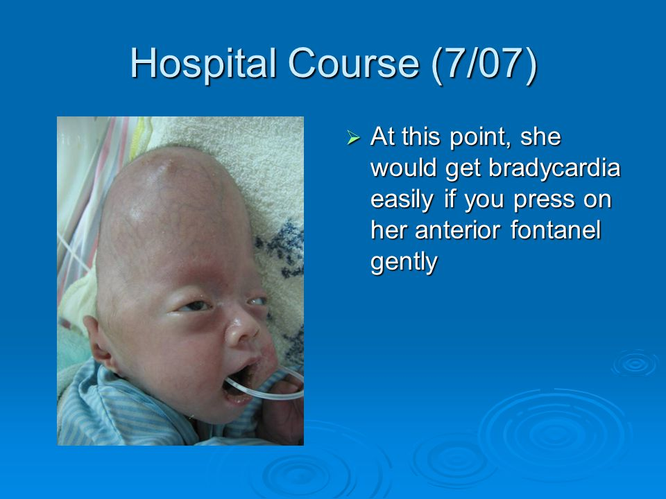  At this point, she would get bradycardia easily if you press on her anterior fontanel gently