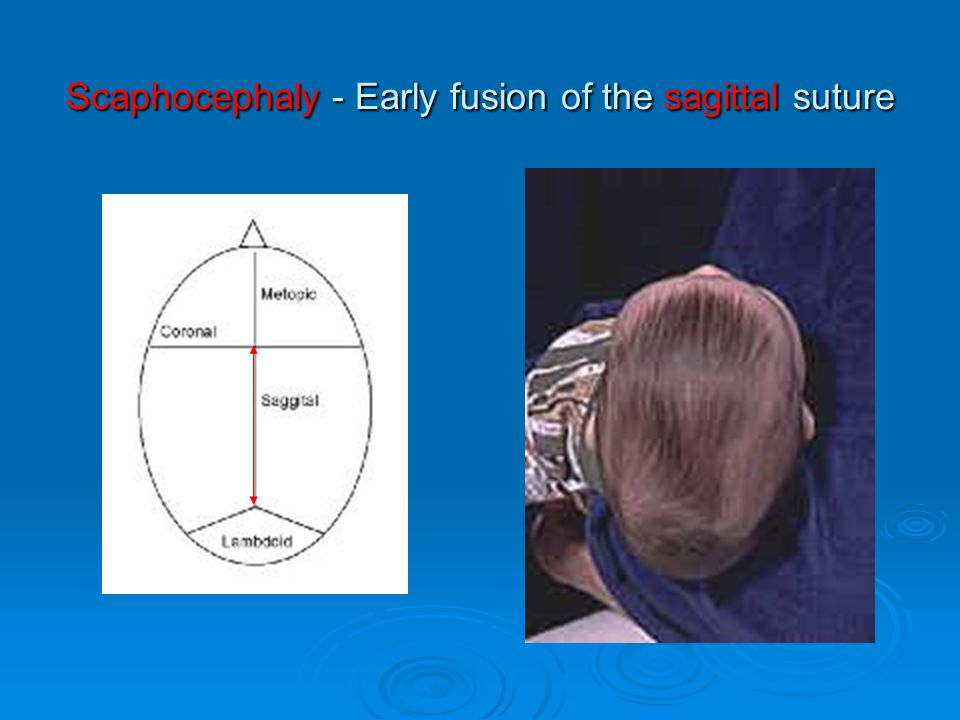 Scaphocephaly - Early fusion of the sagittal suture