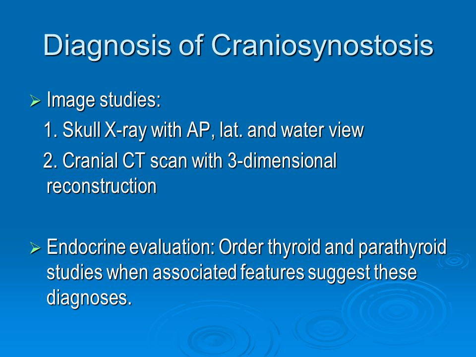 Diagnosis of Craniosynostosis  Image studies: 1. Skull X-ray with AP, lat.