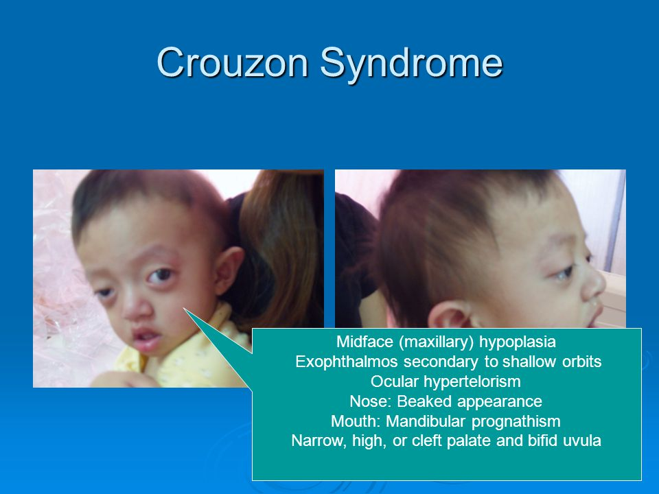 Crouzon Syndrome Midface (maxillary) hypoplasia Exophthalmos secondary to shallow orbits Ocular hypertelorism Nose: Beaked appearance Mouth: Mandibular prognathism Narrow, high, or cleft palate and bifid uvula