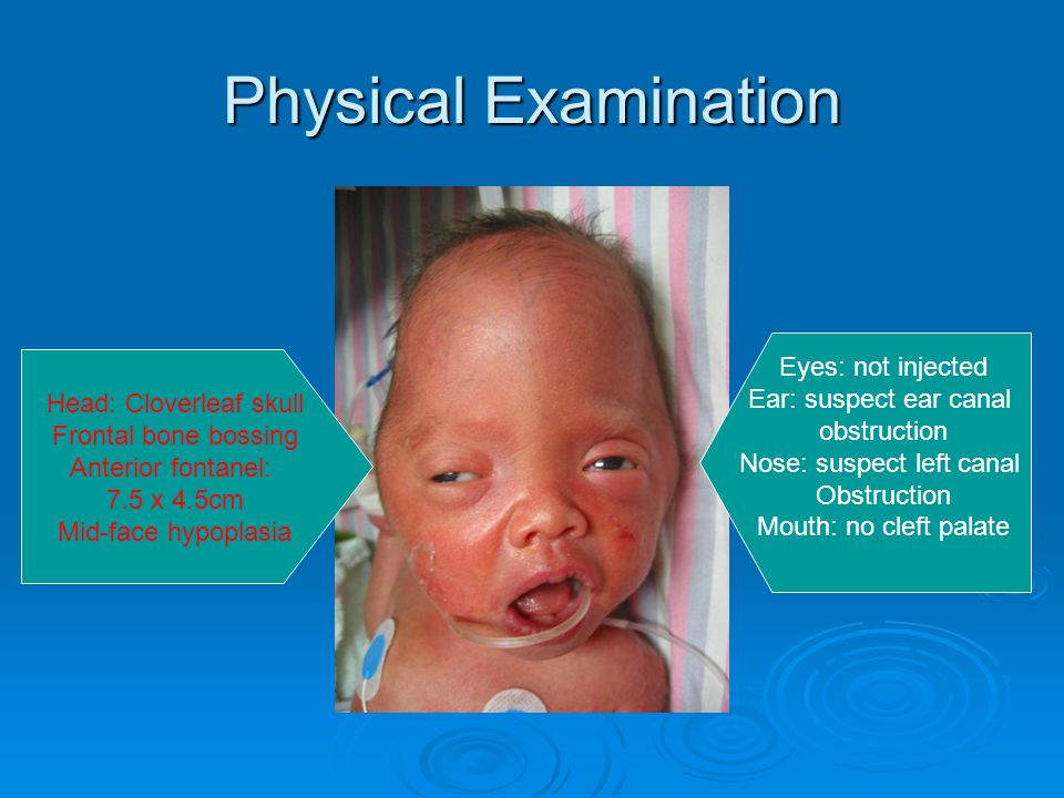 Physical Examination Frontal area bossing Pseudo low set ears Exophthalmos