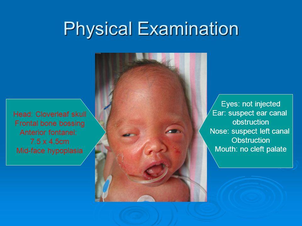 Crouzon Syndrome Midface (maxillary) hypoplasia Exophthalmos secondary to shallow orbits Ocular hypertelorism Nose: Beaked appearance Mouth: Mandibular prognathism Narrow, high, or cleft palate and bifid uvula