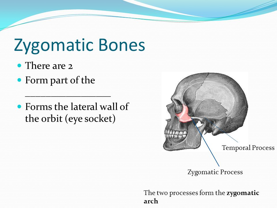 Zygomatic Bones There are 2 Form part of the _________________ Forms the lateral wall of the orbit (eye socket) Zygomatic Process Temporal Process The two processes form the zygomatic arch