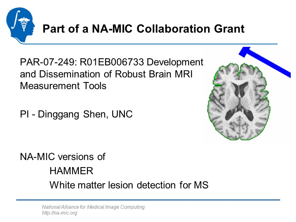 National Alliance for Medical Image Computing http://na-mic.org Skull Stripping Standard step in many neuro applications –Removes anatomy not relevent to the analysis –Improves robustness Preliminary results for grant used FSL –Needed a skull stripper with a NA-MIC compatible license