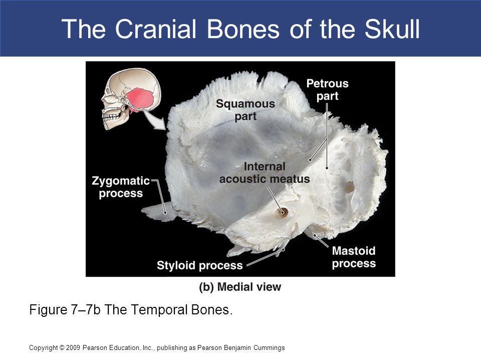 Copyright © 2009 Pearson Education, Inc., publishing as Pearson Benjamin Cummings The Cranial Bones of the Skull Figure 7–7b The Temporal Bones.