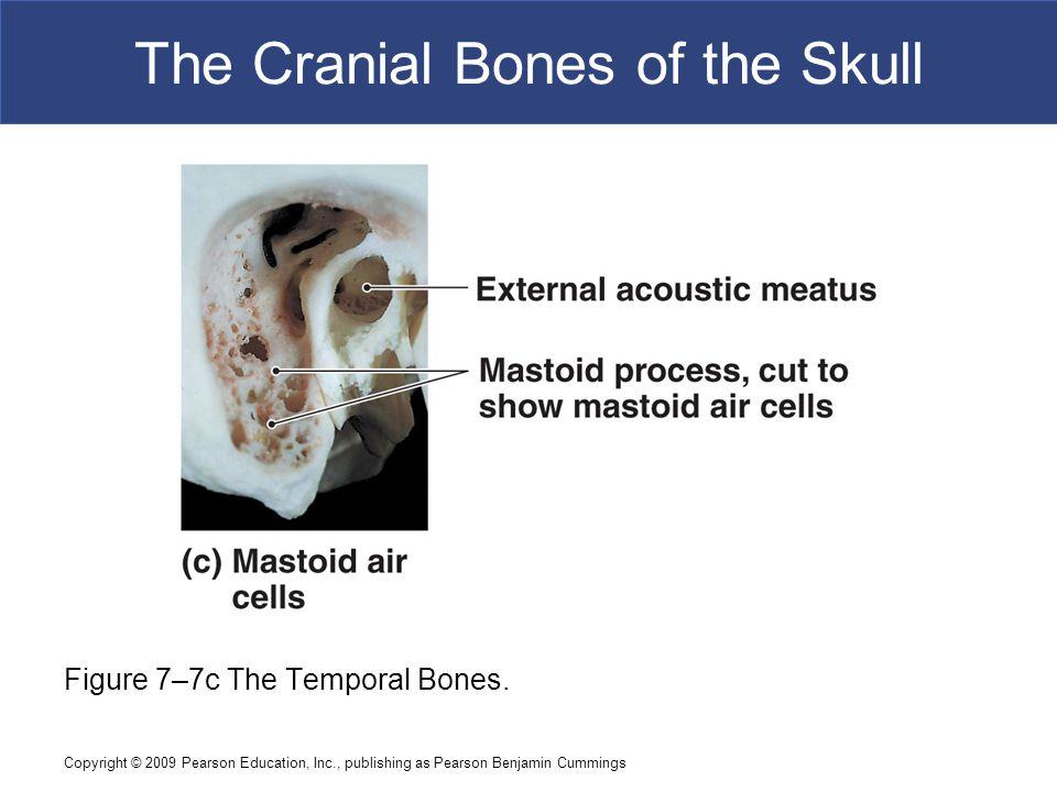 Copyright © 2009 Pearson Education, Inc., publishing as Pearson Benjamin Cummings The Cranial Bones of the Skull Figure 7–7c The Temporal Bones.