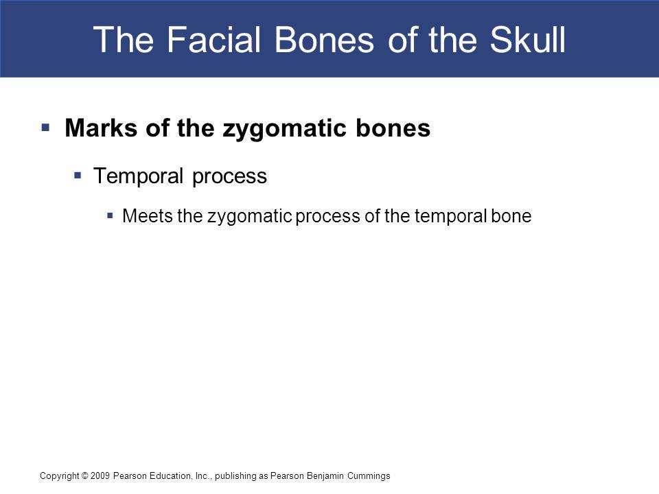 Copyright © 2009 Pearson Education, Inc., publishing as Pearson Benjamin Cummings The Facial Bones of the Skull  Marks of the zygomatic bones  Tempo