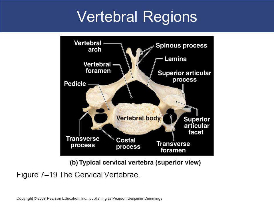 Copyright © 2009 Pearson Education, Inc., publishing as Pearson Benjamin Cummings Vertebral Regions Figure 7–19 The Cervical Vertebrae.