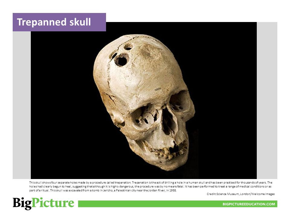 BIGPICTUREEDUCATION.COM This is an illustration of a trepanation procedure drawn in 1594 in France.